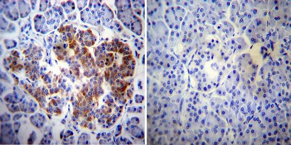 Immunocytochemistry - Anti-ErbB 4 antibody [HFR1] (ab19391)