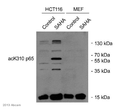 Anti-NF-kB p65 (acetyl K310) antibody (ab19870)