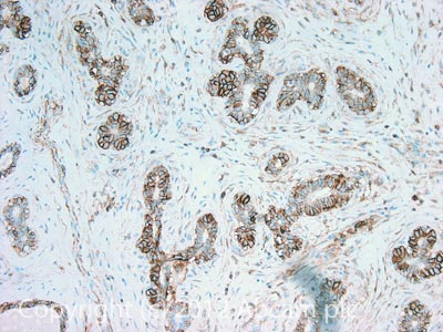 Immunohistochemistry (Formalin/PFA-fixed paraffin-embedded sections) - Anti-CD44 antibody [MEM-85] (ab2212)