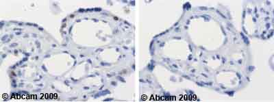 Immunohistochemistry (Formalin/PFA-fixed paraffin-embedded sections)-Cdk2 antibody [2B6](ab2363)