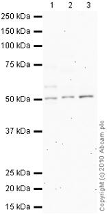 Western blot - Somatostatin Receptor 1 antibody (ab2366)