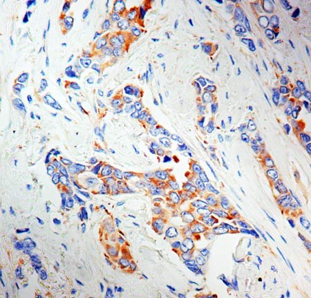Immunohistochemistry (Formalin/PFA-fixed paraffin-embedded sections) - Anti-MVP antibody [1032] (ab2376)