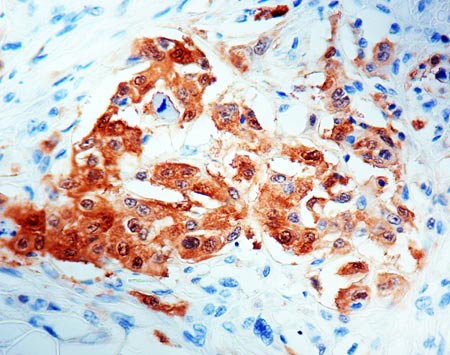 Immunohistochemistry (Formalin/PFA-fixed paraffin-embedded sections) - Anti-Mesothelioma antibody [HBME-1] (ab2383)