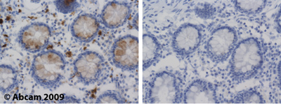Immunohistochemistry (Formalin/PFA-fixed paraffin-embedded sections)-Lysozyme antibody - Lysosome Marker(ab2408)