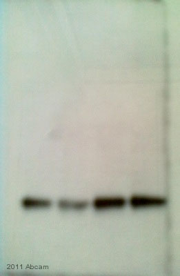 Western blot - Anti-PCNA antibody - Proliferation Marker (ab2426)