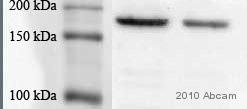 Immunoprecipitation - EGFR antibody (ab2430)