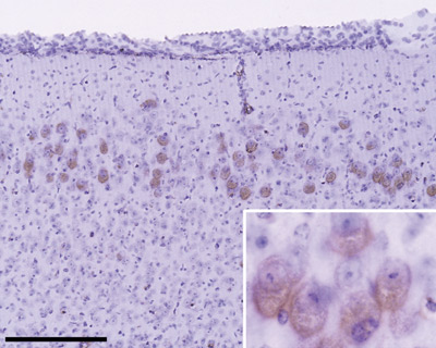 Immunohistochemistry (Frozen sections) - Anti-beta Amyloid antibody (ab2539)