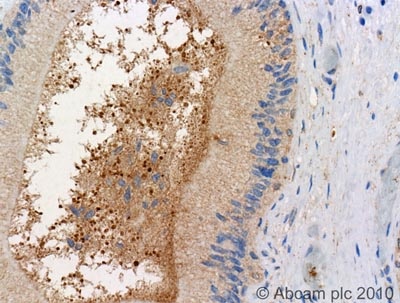 Immunohistochemistry (Formalin/PFA-fixed paraffin-embedded sections)-LIS1 antibody(ab2607)