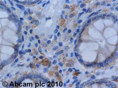 Immunohistochemistry (Formalin/PFA-fixed paraffin-embedded sections)-eIF4G1 antibody(ab2609)