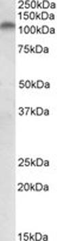 Western blot - PLK4 antibody (ab2642)
