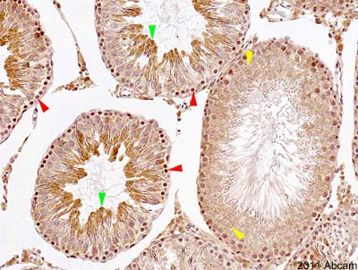 Immunohistochemistry (Formalin/PFA-fixed paraffin-embedded sections) - mTOR antibody (ab2732)