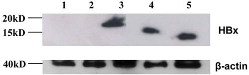 Western blot - Anti-Hepatitis B Virus X antigen antibody [X36C] (ab2741)