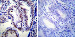 Immunohistochemistry (Formalin/PFA-fixed paraffin-embedded sections)-Anti-Progesterone Receptor antibody [PR-AT 4.14] - ChIP Grade(ab2764)