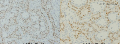 Immunohistochemistry (Formalin/PFA-fixed paraffin-embedded sections) - Anti-Progesterone Receptor antibody [Alpha PR6] (ab2765)