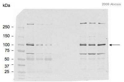 Western blot - Aryl hydrocarbon Receptor  antibody [RPT1] (ab2770)