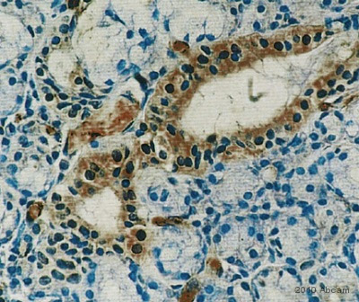 Immunohistochemistry (Formalin/PFA-fixed paraffin-embedded sections) - Prolactin Receptor antibody [U5] (ab2772)