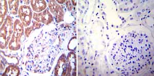 Immunohistochemistry (Formalin/PFA-fixed paraffin-embedded sections)-Anti-Mineralocorticoid Receptor antibody [H10E4C9F](ab2774)