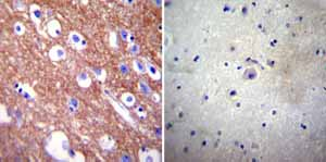 Immunohistochemistry (Formalin/PFA-fixed paraffin-embedded sections)-Anti-Calcium Pump PMCA4 ATPase antibody [JA9](ab2783)