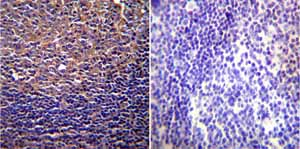 Immunohistochemistry (Formalin/PFA-fixed paraffin-embedded sections)-Anti-CFTR antibody [CF3](ab2784)