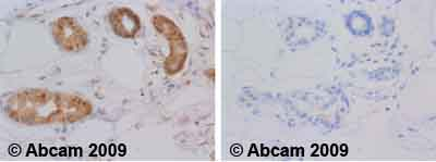 Immunohistochemistry (Formalin/PFA-fixed paraffin-embedded sections) - Hsp70 antibody [5A5] (ab2787)