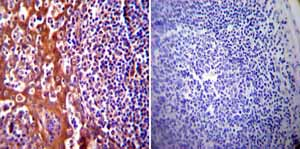 Immunohistochemistry (Formalin/PFA-fixed paraffin-embedded sections)-Anti-Hsp70 antibody [5A5](ab2787)