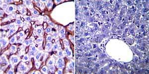Immunohistochemistry (Formalin/PFA-fixed paraffin-embedded sections)-Anti-GRP94 antibody [9G10] - ER Marker(ab2791)