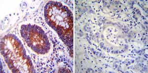 Immunohistochemistry (Formalin/PFA-fixed paraffin-embedded sections)-Anti-PDI antibody [RL90] - ER Marker(ab2792)