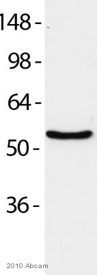 Western blot - PDI antibody [RL90] - ER Marker (ab2792)