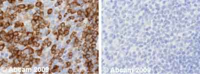 Immunohistochemistry (Formalin/PFA-fixed paraffin-embedded sections) - NFAT2 antibody [7A6] (ab2796)