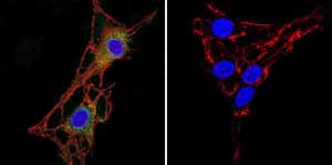 Immunocytochemistry/ Immunofluorescence-Anti-Acetylcholinesterase antibody [ZR3](ab2802)