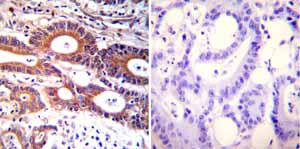 Immunohistochemistry (Formalin/PFA-fixed paraffin-embedded sections)-Anti-ADP Ribosylation Factor antibody [1D9](ab2806)