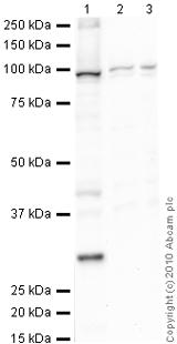 Western blot - SERCA2 ATPase antibody [IID8] (ab2817)
