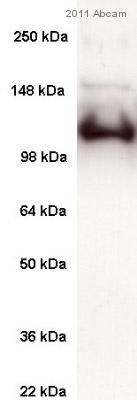 Western blot - SERCA1 ATPase antibody [VE121G9] (ab2819)
