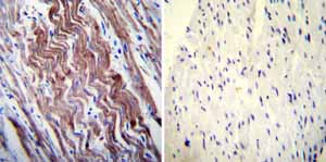Immunohistochemistry (Formalin/PFA-fixed paraffin-embedded sections)-Anti-SERCA1 ATPase antibody [VE121G9](ab2819)