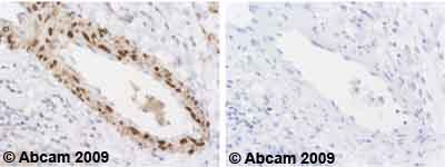 Immunohistochemistry (Formalin/PFA-fixed paraffin-embedded sections) - Phospholamban antibody [2D12] (ab2865)