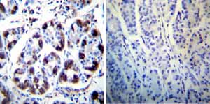 Immunohistochemistry (Formalin/PFA-fixed paraffin-embedded sections)-Anti-Hydrogen Potassium ATPase Beta antibody [2G11](ab2866)