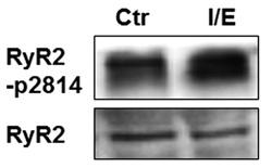 Western blot - Anti-Ryanodine Receptor antibody [34C] (ab2868)