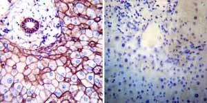 Immunohistochemistry (Formalin/PFA-fixed paraffin-embedded sections)-Anti-beta Sodium Potassium ATPase antibody [M17-P5-F11](ab2873)
