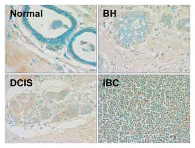 Immunohistochemistry (Formalin/PFA-fixed paraffin-embedded sections) - gamma H2A.X (phospho S139) antibody - DNA double-strand break marker (ab2893)