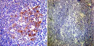 Immunohistochemistry (Formalin/PFA-fixed paraffin-embedded sections)-Anti-Hsp90 alpha antibody(ab2928)