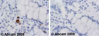 Immunohistochemistry (Formalin/PFA-fixed paraffin-embedded sections) - CD13 antibody [22A5] (ab20136)