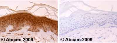 Immunohistochemistry (Formalin/PFA-fixed paraffin-embedded sections)-Involucrin antibody [SY8](ab20202)