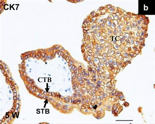 Immunohistochemistry (Formalin/PFA-fixed paraffin-embedded sections) - Anti-Cytokeratin 7 antibody [LP1K] (ab20206)