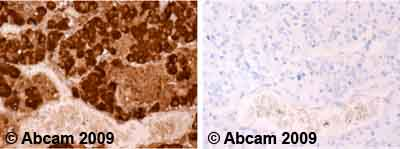 Immunohistochemistry (Formalin/PFA-fixed paraffin-embedded sections)-ACTH antibody [57](ab20358)