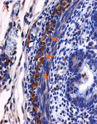 Immunohistochemistry (Formalin/PFA-fixed paraffin-embedded sections) - Anti-PGP9.5 antibody [31A3] (ab20559)