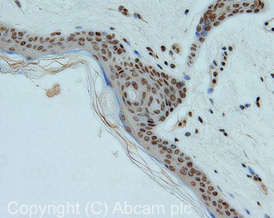 Immunohistochemistry (Formalin/PFA-fixed paraffin-embedded sections) - SMC1 antibody (ab21583)