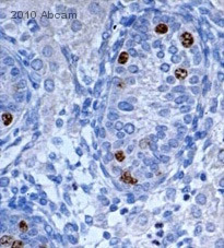 Immunohistochemistry (Formalin/PFA-fixed paraffin-embedded sections) - Nanog antibody - ChIP Grade (ab21624)