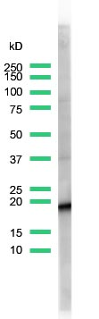 Western blot - Anti-CD3 antibody [SP7], prediluted (ab21703)