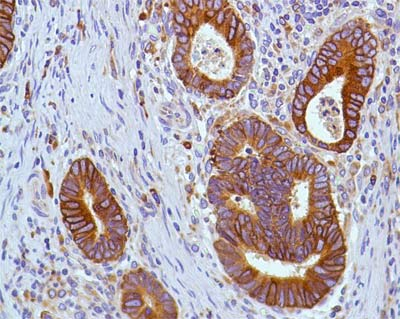 Immunohistochemistry (Formalin/PFA-fixed paraffin-embedded sections) - Anti-COX2 / Cyclooxygenase 2 antibody [SP21], prediluted (ab21704)