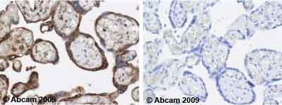 Immunohistochemistry (Formalin/PFA-fixed paraffin-embedded sections) - Calreticulin antibody [FMC 75] (ab22683)